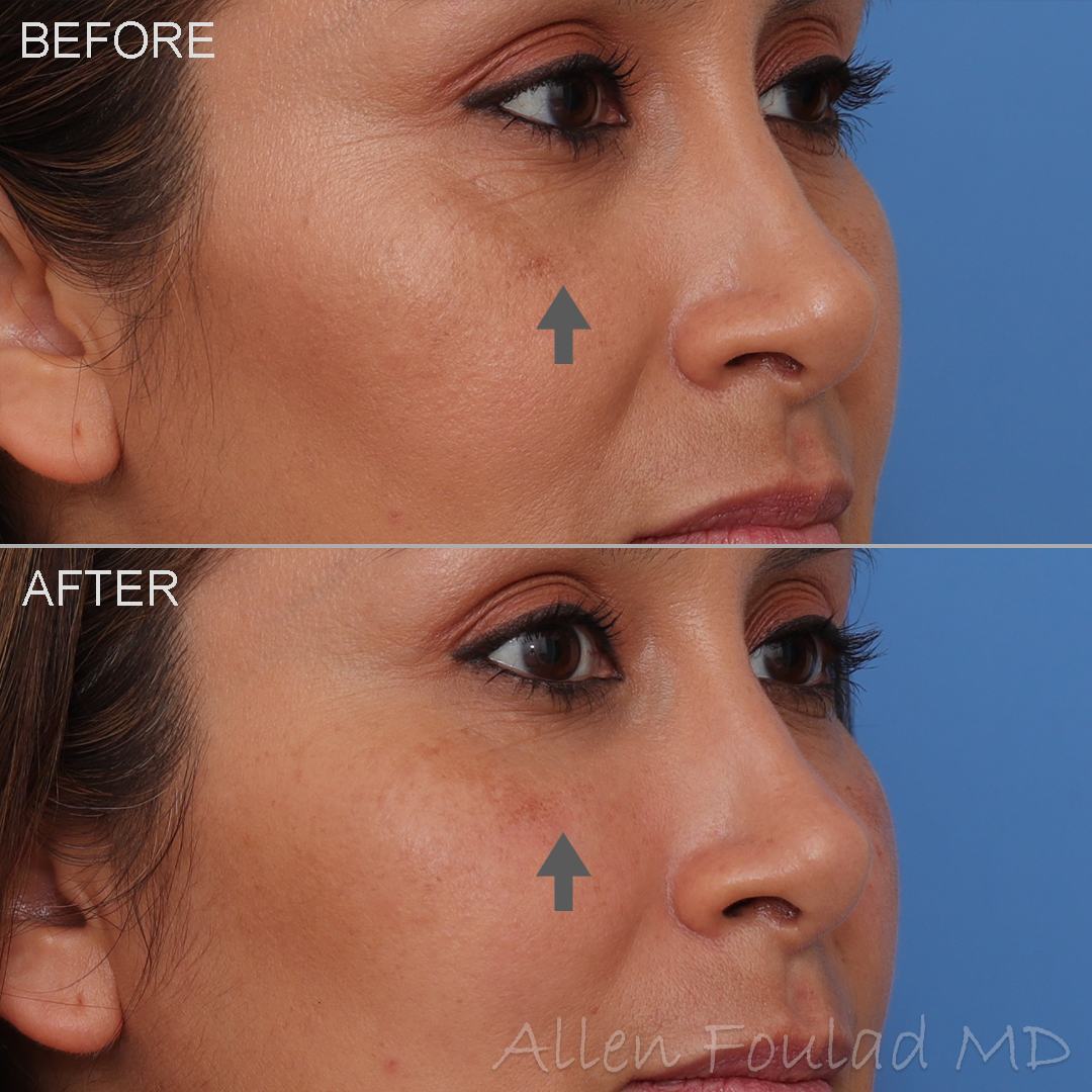 Fillers - Allen Foulad MD Facial Plastic Surgery