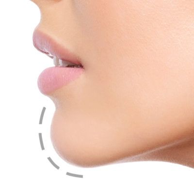 Chin Implant - Allen Foulad MD Facial Plastic Surgery